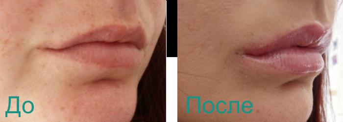 фото до и после увеличения объема губ