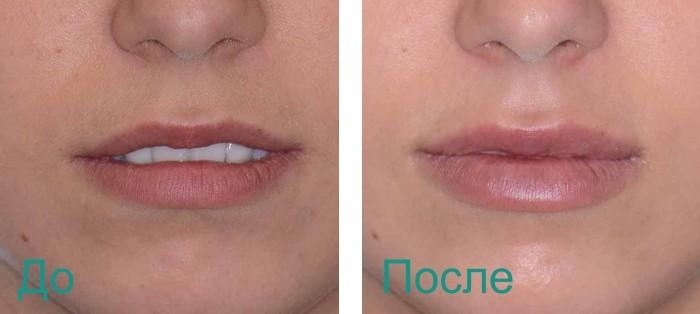 до и после увеличения объема губ