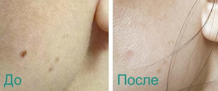 фото до и после лазерного удаления папилломы