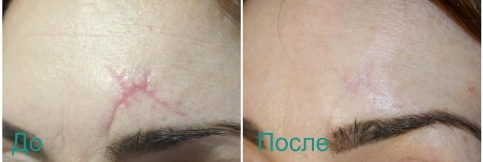 до и после лазерной шлифовки рубца на лице