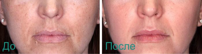эффект после химического пилинга лица