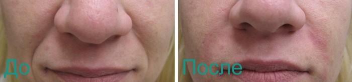 до и после инъекционных процедур