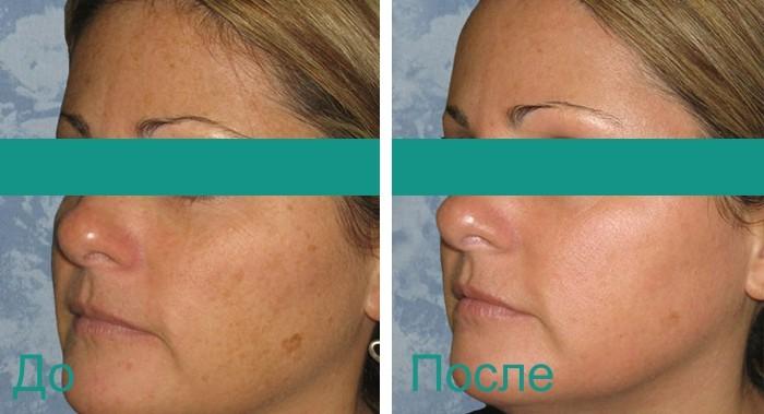 фото до и после процедур лазерной косметологии