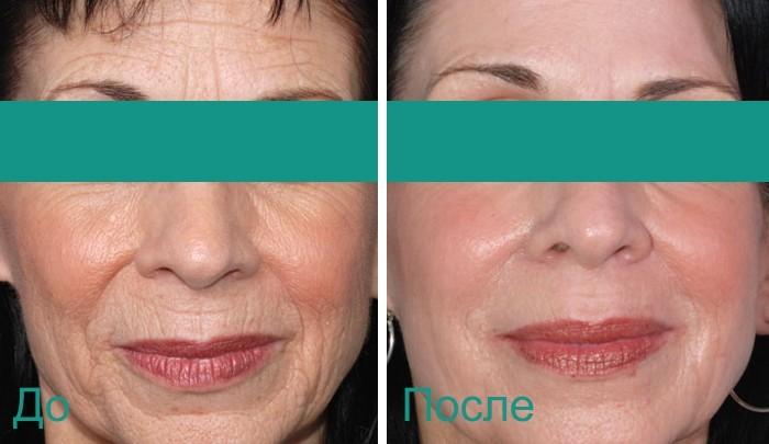 до и после лазерной косметологии