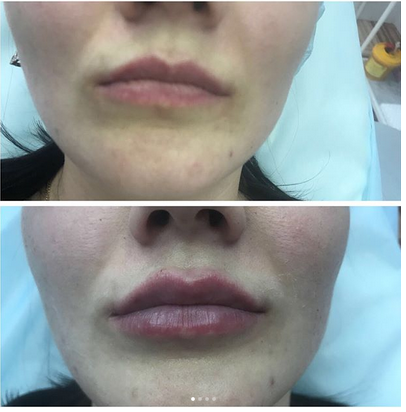 фото до и после контурной пластики губ