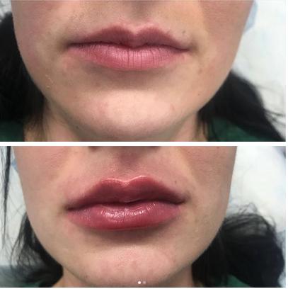 фото до и после увеличения объема гуд
