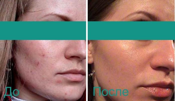 эффект после процедуры по уходу за кожей лица