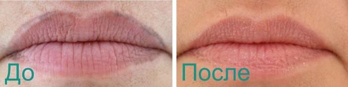 фото фото до и после удаления перманетного макияжа лазером