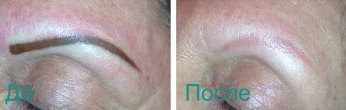лазерное удаления перманетного макияжа