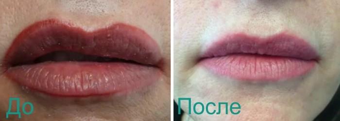 фото до и после удаления перманетного макияжа