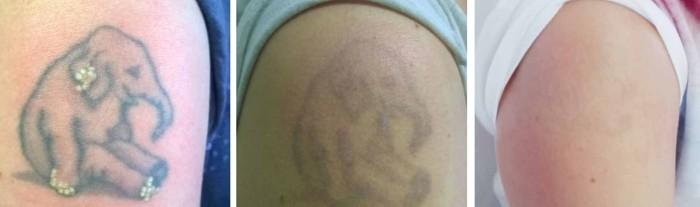 фото до и после лазерного удаления татуировки