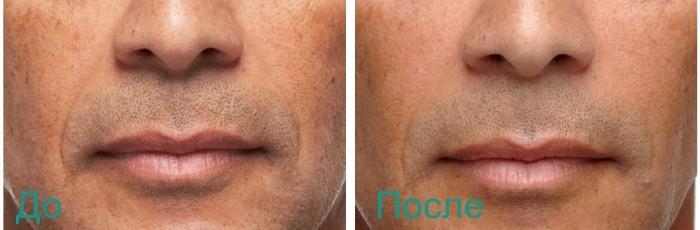 фото до и после биоармировании лица