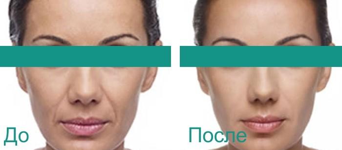 фото до и после векторного лифтинга
