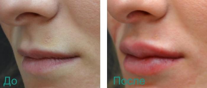 эффект после увеличения объема губ