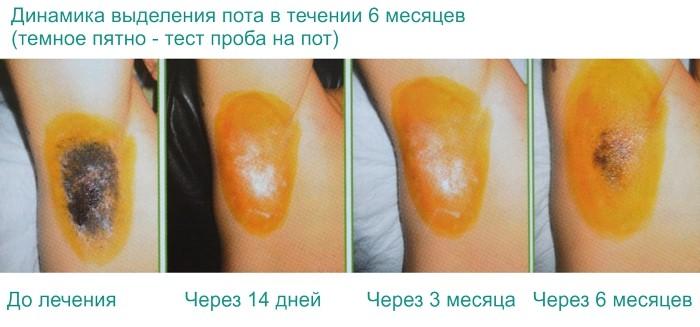 до и после лечения гипергидроза подмышек