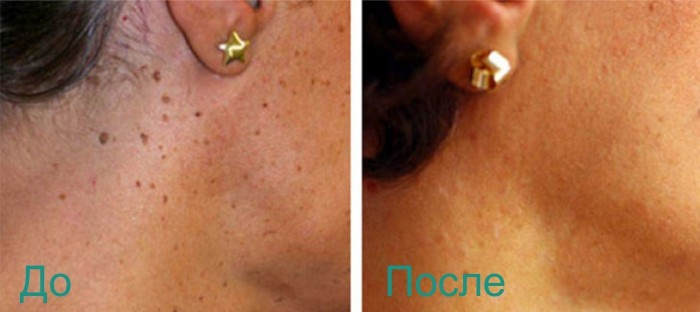 фото до и после лазерного удаления кератомы