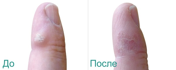 фото до и после лазерного удаления бородавок