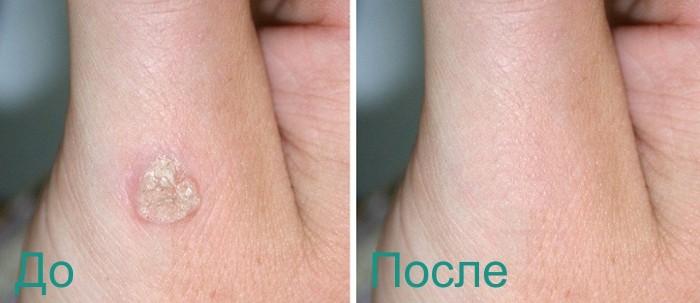 эффект после лазерного удаления бородавки