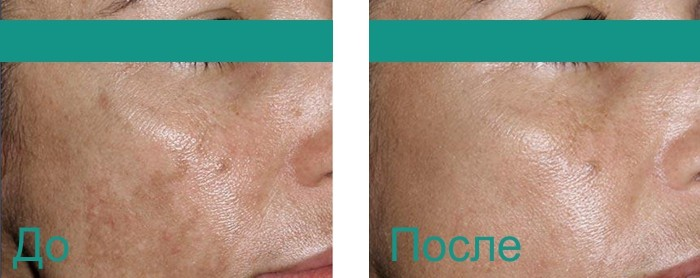 до и после фракционного фототермолиза лица