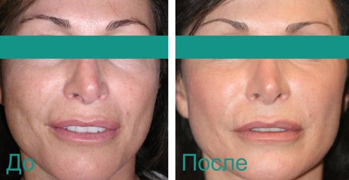 фото до и после шлифовки лица лазером со2