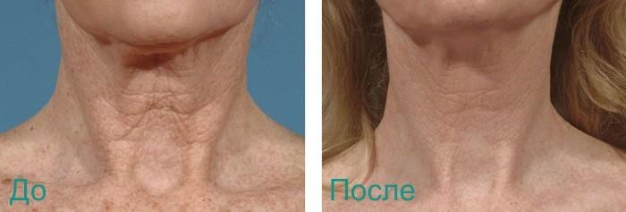до и после лазерной шлифовки лица