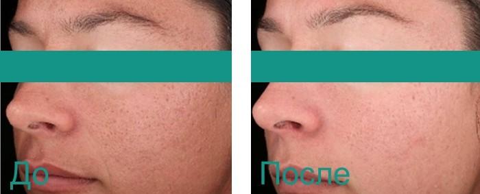 до и после химического пилинга лица
