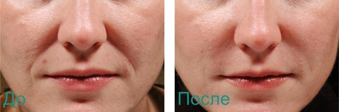 фото до и после уколов красоты