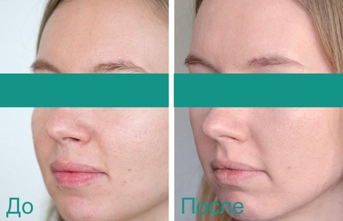 фото до и после процедур по уходу за лицом