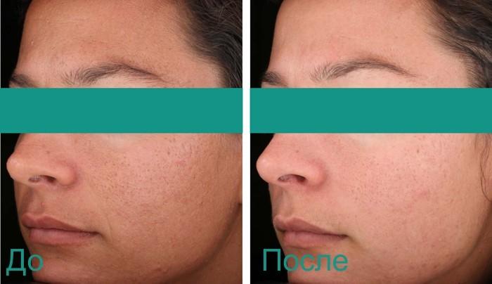до и после процедуры по уходу за кожей лица