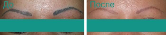 до и после удаления татуажа