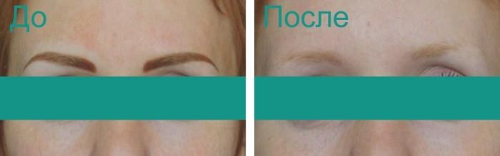 фото до и после удаления татуажа лазером